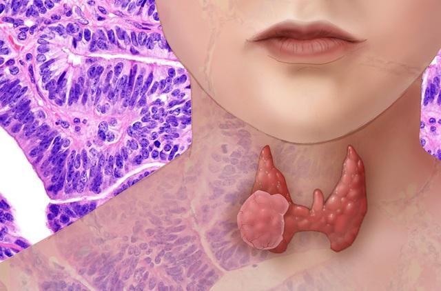 Các phương pháp điều trị ung thư tuyến giáp - 1