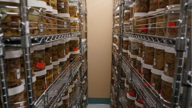 Hình ảnh lưu trữ não người tại một ngân hàng não ở Mỹ - 2