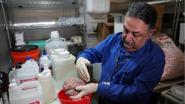Hình ảnh lưu trữ não người tại một ngân hàng não ở Mỹ - 1