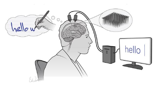 Biến chữ cái trong đầu thành văn bản trên màn hình thông qua cấy ghép não - 1