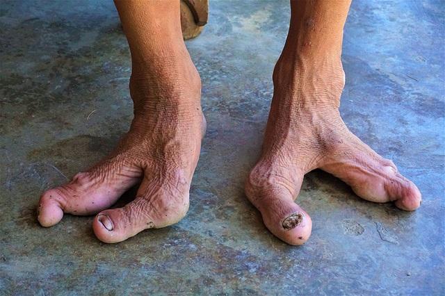 Gia đình kỳ lạ: 13 người có bàn chân chỉ 2 hoặc 3 ngón - 2