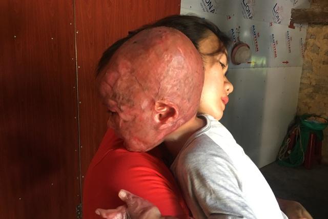 Đau nhói lòng cảnh cậu bé 2 tuổi bị bỏng xăng nặng do chơi trò sinh nhật - 2