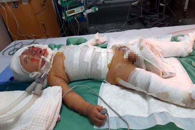 Đau nhói lòng cảnh cậu bé 2 tuổi bị bỏng xăng nặng do chơi trò sinh nhật - 4