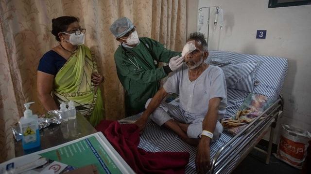 Chưa hết quay cuồng với nấm đen - nấm trắng, Ấn Độ có thêm bệnh nấm vàng - 1