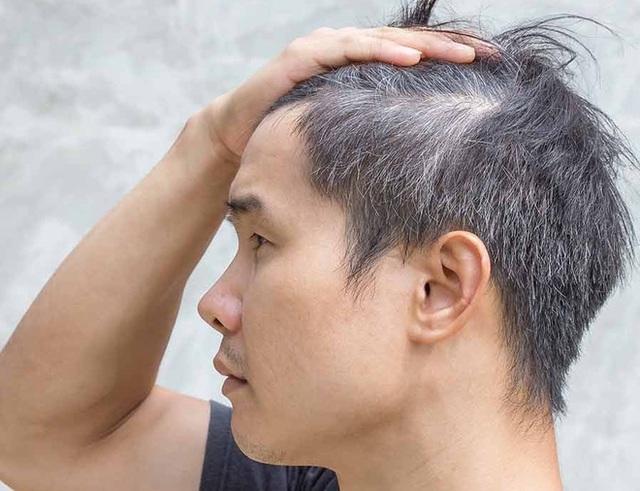 Sắc mun - dầu gội phủ bạc giúp tóc đen bóng trở lại - 1