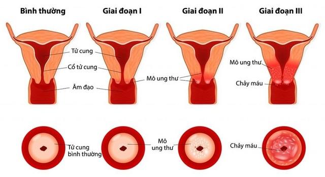 Ung thư cổ tử cung, những điều mọi phụ nữ nên biết về căn bệnh này - 1