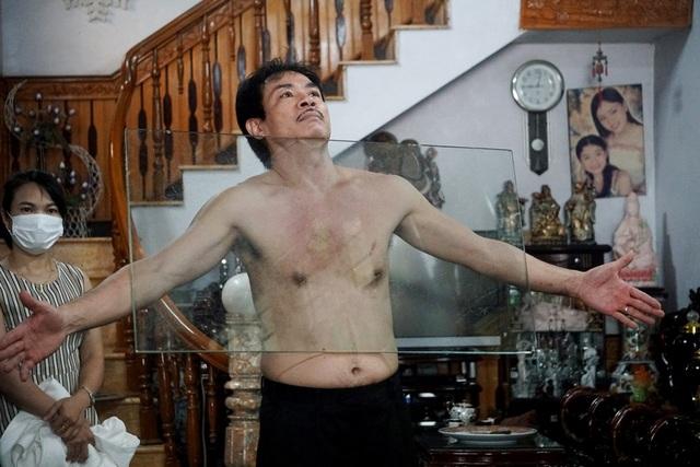 Kỳ lạ người đàn ông như nam châm khổng lồ, hút chặt các đồ vật vào cơ thể - 4