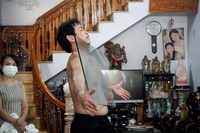 Kỳ lạ người đàn ông như nam châm khổng lồ, hút chặt các đồ vật vào cơ thể - 5
