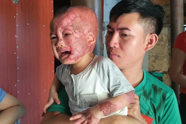 Đau nhói lòng cảnh cậu bé 2 tuổi bị bỏng xăng nặng do chơi trò sinh nhật - 8