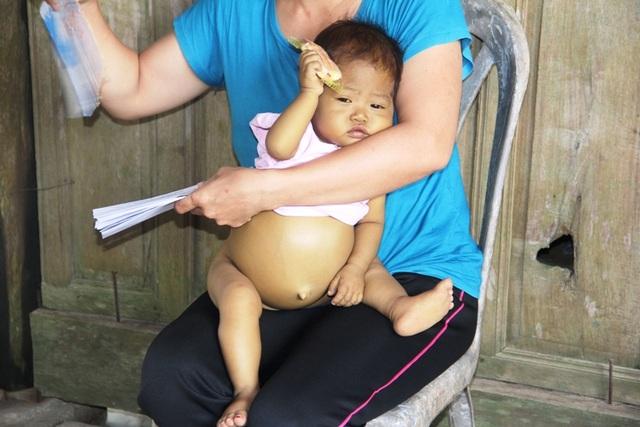 Bụng bé Nhi chướng to như cái trống để lộ rõ các tĩnh mạch giãn nổi dưới làn da mỏng thía.