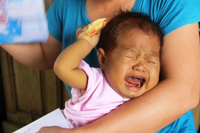 Mắc chứng bệnh tắc đường mật bẩm sinh, bé Hoài Nhi ốm yếu, da vàng như váng nghệ. Suốt ngày bé chỉ khóc vì bệnh tật.
