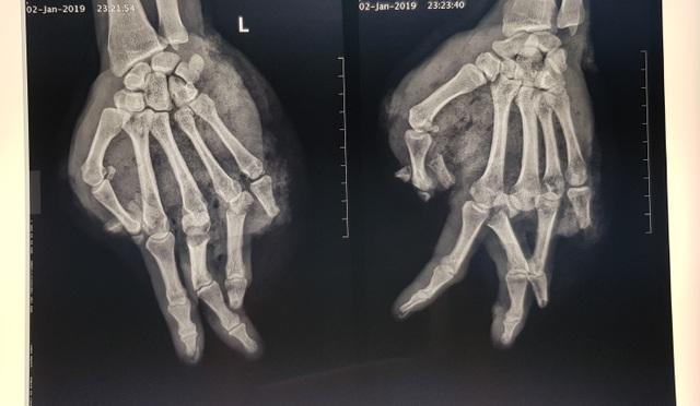 Thay bình ga nồi lẩu, bệnh nhân bị nát tung bàn tay trái - Ảnh 2.