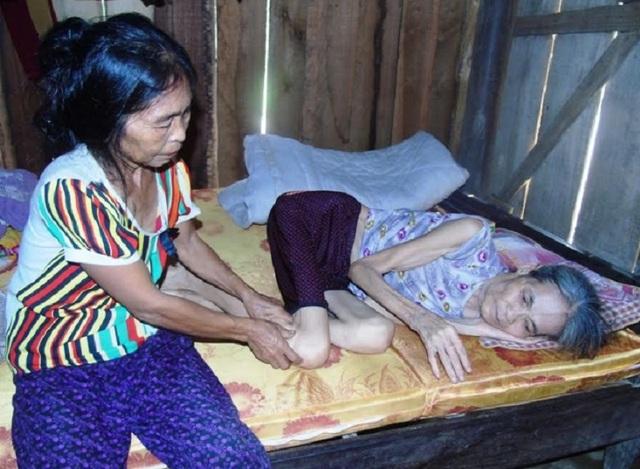 Bà Đinh Thị Thêm, năm nay gần 60 tuổi, 30 năm nay bà mắc bệnh tâm thần, nay lại bị tai biến nằm một chỗ. (Ảnh Đặng Tài)