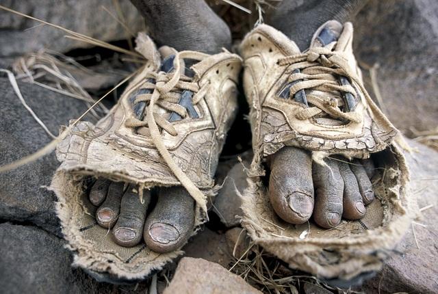 Bức ảnh đoạt giải nhì được thực hiện bởi Matjaz Krivic (Slovenia), chụp đôi chân của một cậu bé người Mali. Nhiếp ảnh gia Krivic thấy cậu mang đôi giày trên tay vì giày đã hỏng hẳn, vốn mang sẵn kim chỉ trong hành lý, Krivic đã cùng cậu bé khâu lại đôi giày để biến nó thành… đôi dép, giúp cậu có thể tiếp tục chăn thả đàn gia súc mà không phải đi chân trần.