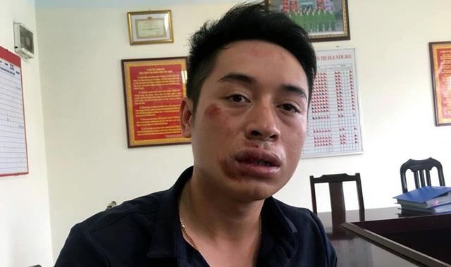 Trung úy Phạm Văn Tùng bị đấm gãy 2 răng cửa.