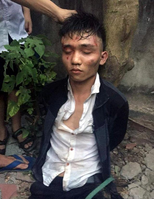 Một trong 2 tên cướp bị bắt sống.