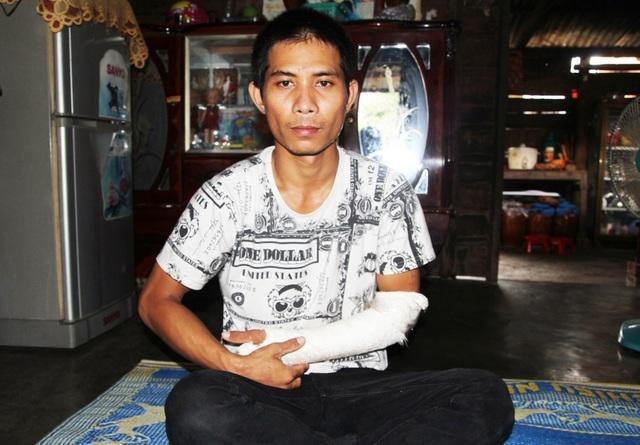 Anh Ksor Khoa bị đánh gãy tay