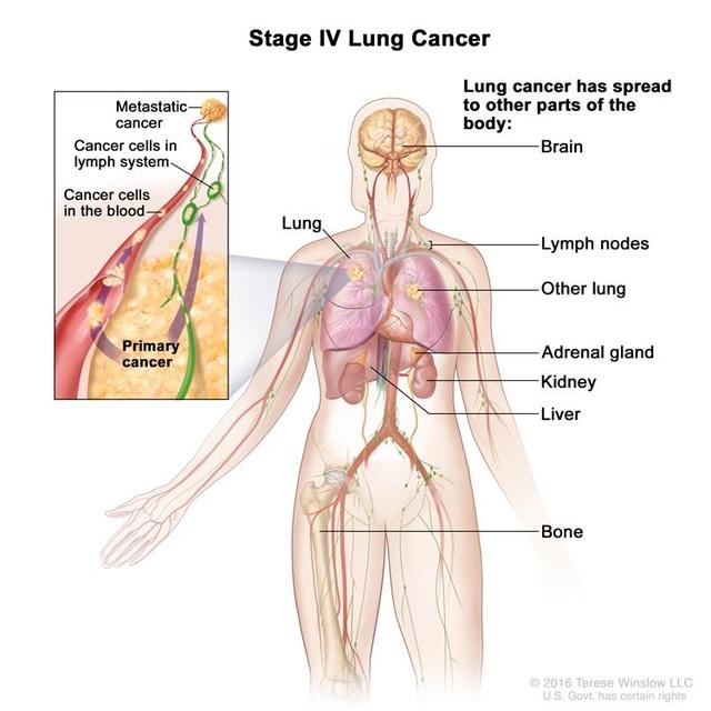 Ung thư giai đoạn cuối đã lây lan từ vị trí ban đầu tới các cơ quan xa của cơ thể, gây ra nhiều triệu chứng và biến chứng, ảnh hưởng tới chất lượng sống của người bệnh.