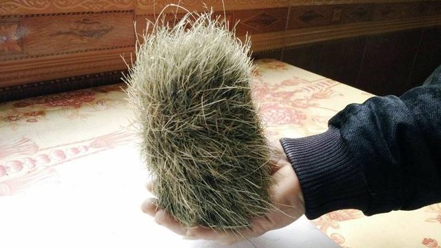 Vật lạ này cứng, xung quanh có nhiều lông.
