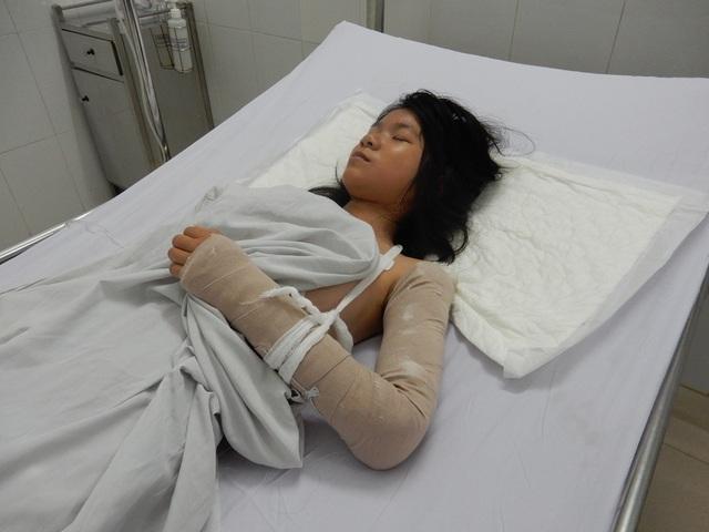 Cháu Linh bị gãy cánh tay trái, chấn thương lách độ 3, chấn thương thận độ 3 – 4