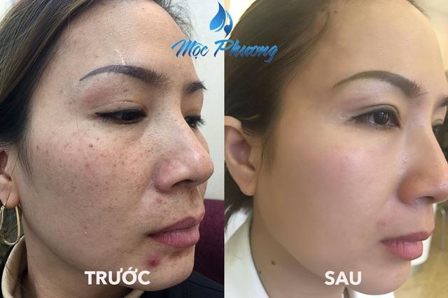 Kết quả đạt được sau khi điều trị nám ở Mộc Phương Beauty Salon luôn khiến khách hài lòng