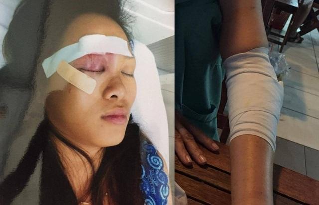 Chị Tuyết với vết thương ở vùng mặt và cánh tay bị gãy của bà Thủy