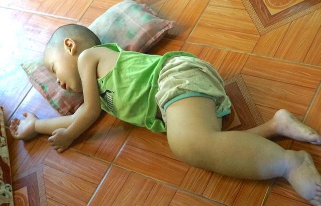 Chính vì mang căn bệnh chân voi, nên cháu Minh thường nằm nhiều hơn đi.