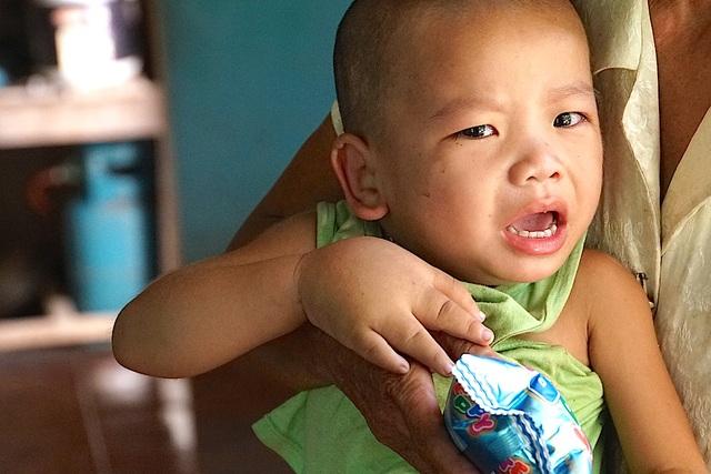 Mang căn bệnh chân voi nên cháu Minh rất đau đớn.