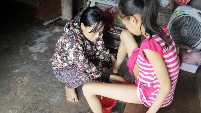 Hàng ngày chị Loan phải tự thông tiểu cho con, mỗi chiếc ống thông tiểu giá chỉ 10 ngàn đồng nhưng không đủ tiền mua chị phải luộc lại để dùng cho con mình
