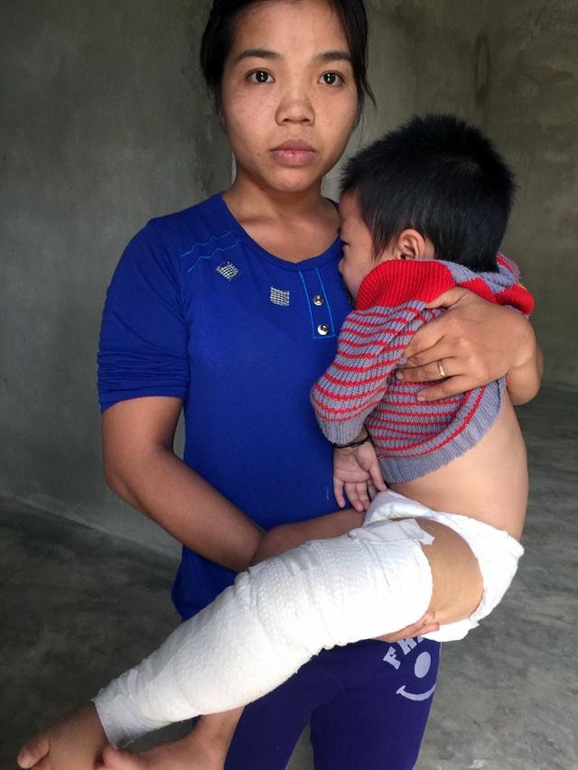 Nhờ độc giả của báo Dân trí nên cháu Minh đã được gia đình đưa đi Hà Nội phẫu thuật lần 1.