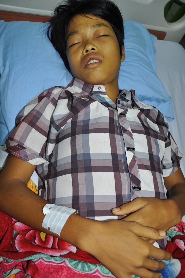 Thể bệnh của Dũng là nhẹ nhưng vì không được điều trị nên phải đến viện trong tình trạng cấp cứu.
