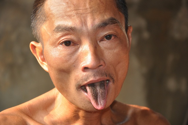 Người anh nhiều mụn nhọt và phần lưỡi đen xì kể từ khi bị bệnh.