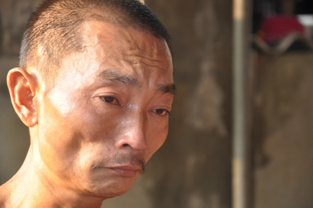 Anh Vượng bị xơ gan cổ trướng nặng nhưng không có tiền đi chữa trị.