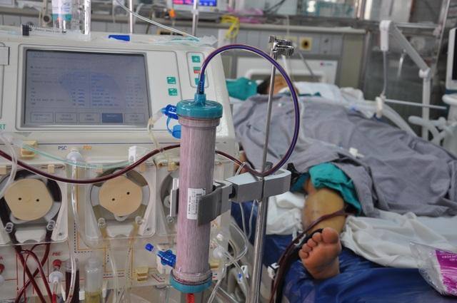 Chị phải thở máy, lọc máu với chi phí lên đến gần 30 triệu/ ngày.