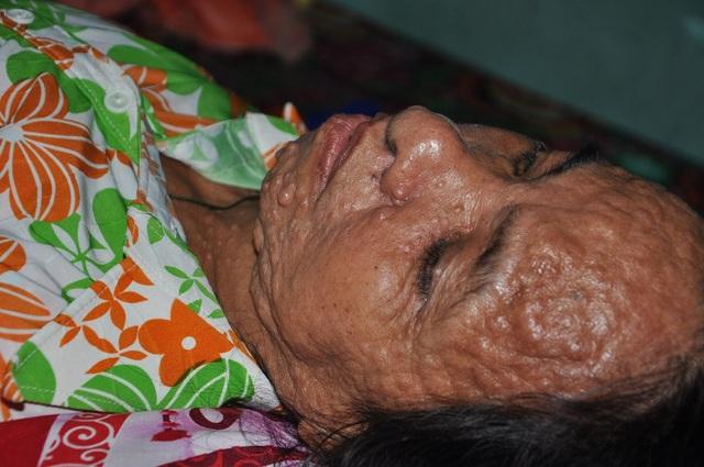 Chị Làn đau đớn với căn bệnh nhưng không có tiền xạ trị.