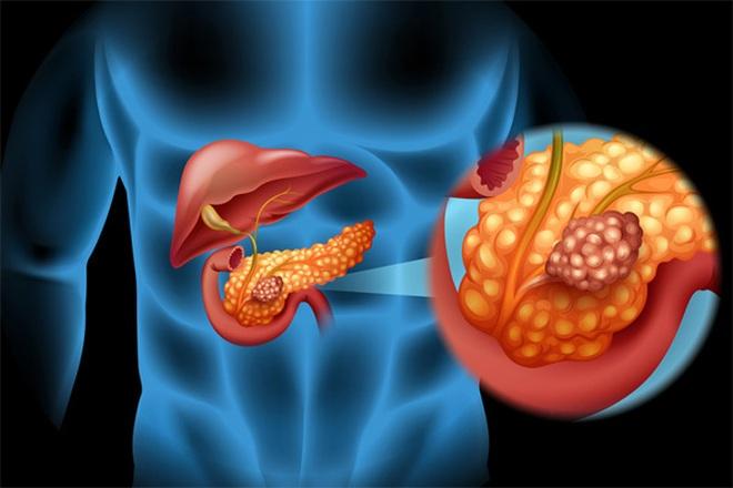 Có thể phát hiện sớm ung thư tụy bằng xét nghiệm máu không? - 1