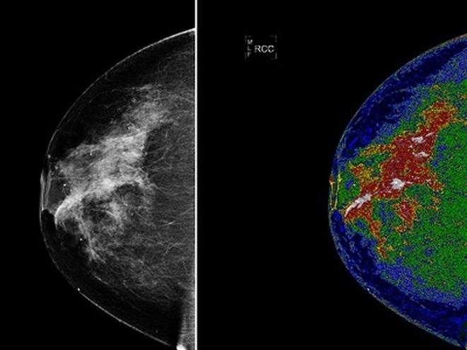 Có những dấu hiệu này coi chừng ung thư vú quay trở lại - 1