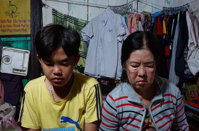 Cuộc sống cơ cực của cậu học trò giỏi bị cha bỏ rơi vừa đi học, vừa chăm mẹ - 1