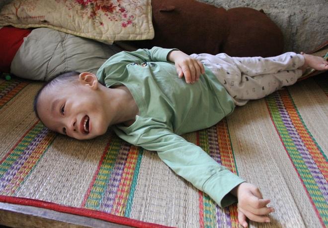 Cậu bé 6 tuổi nghẹn ngào cầu xin các nhà hảo tâm giúp đôi chân em lành lặn - 3