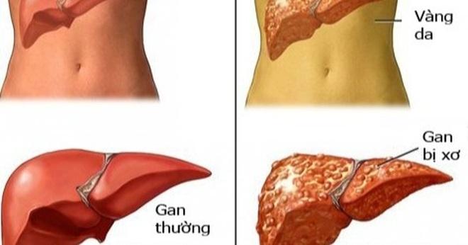 Những dấu hiệu cảnh báo xơ gan cấp độ cao nhất, nguy hại cho sức khỏe