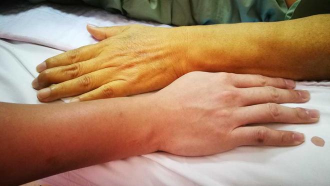 Triệu chứng men gan cao thường gặp ở bệnh nhân - 3