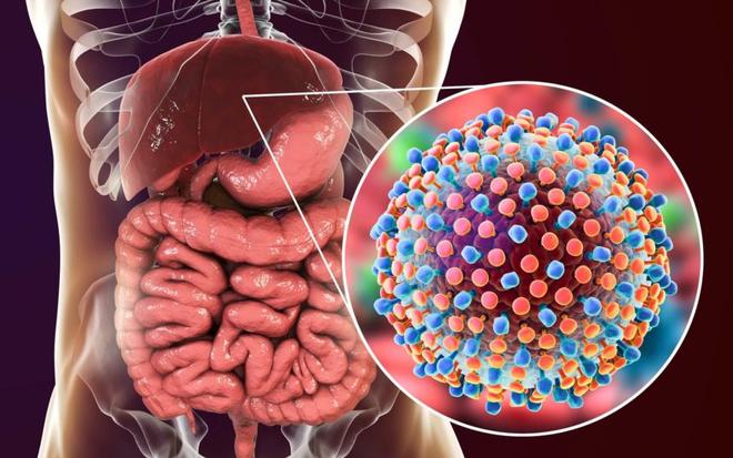 Triệu chứng men gan cao thường gặp ở bệnh nhân - 4