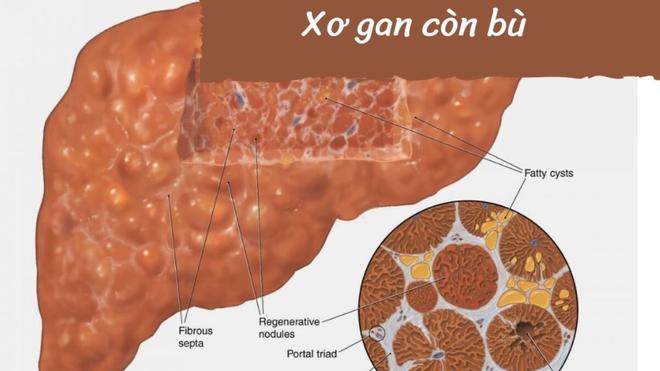 Tìm hiểu về căn bệnh viêm gan B có nguy hiểm không? - 3