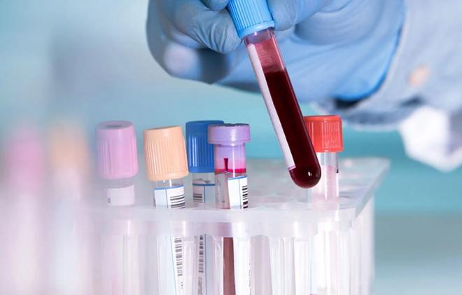 Định lượng virus viêm gan B như thế nào? Có tác dụng gì? - 1