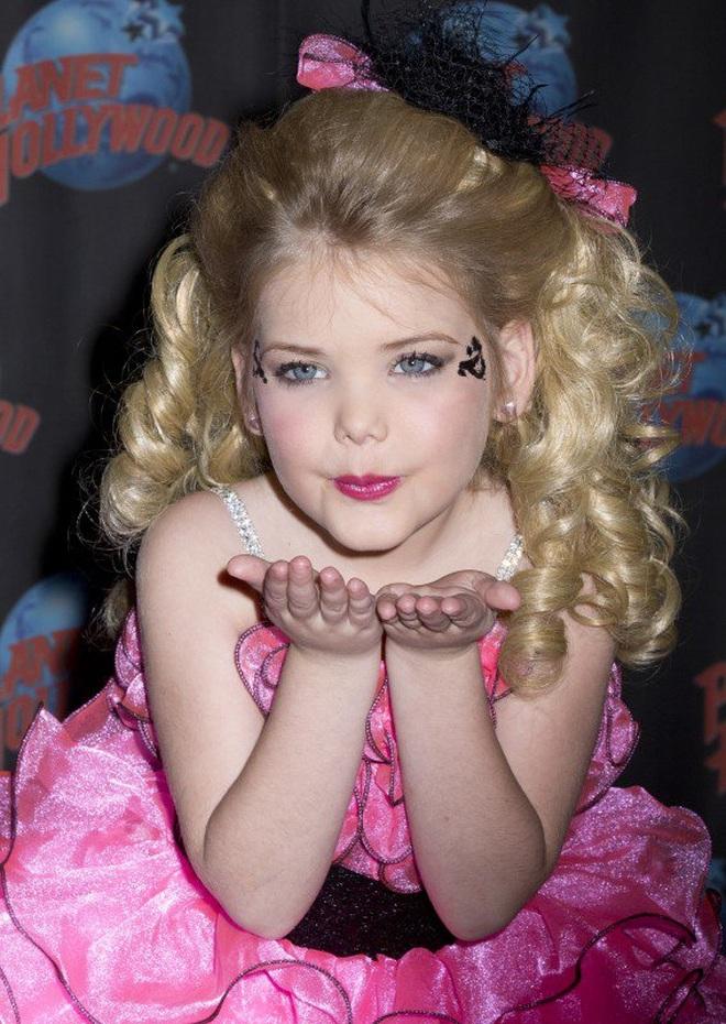 Hoa hậu nhí từng tiêm botox năm 4 tuổi lột xác ở tuổi trưởng thành - 3