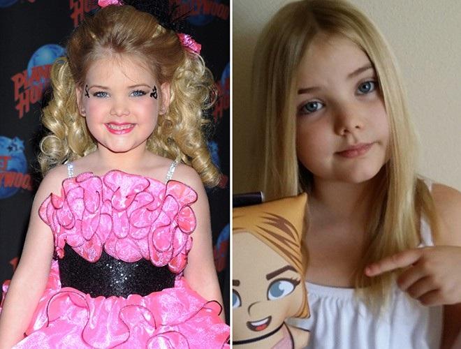 Hoa hậu nhí từng tiêm botox năm 4 tuổi lột xác ở tuổi trưởng thành - 1