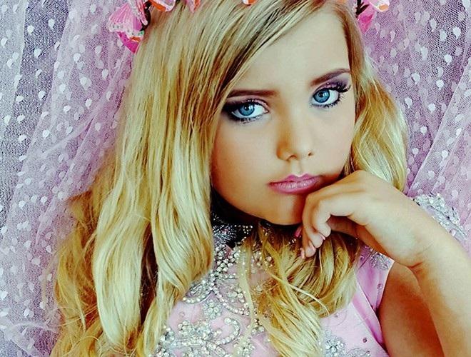 Hoa hậu nhí từng tiêm botox năm 4 tuổi lột xác ở tuổi trưởng thành - 2