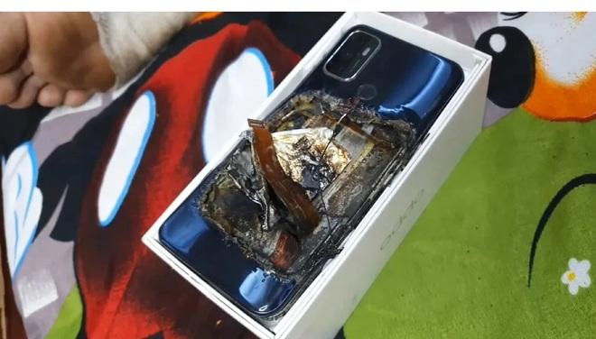 Smartphone phát nổ trong túi quần khiến chủ nhân bị thương nặng - 1