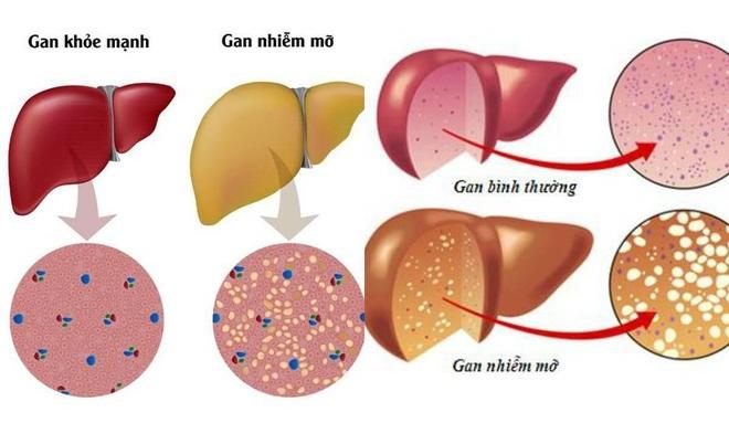 Hai biến chứng nguy hiểm của gan nhiễm mỡ - 1