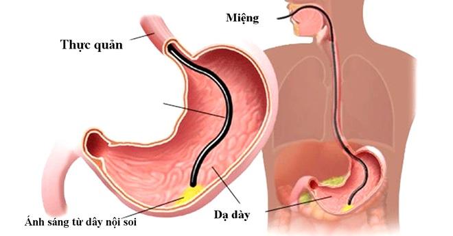 Nội soi dạ dày có ý nghĩa gì? - 1